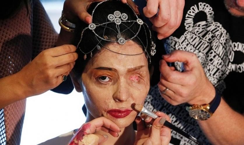 Indiana com rosto desfigurado desafia os padrões de beleza em desfile de moda